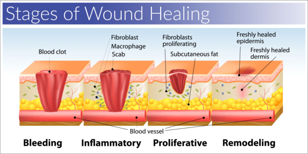 Wound Stages